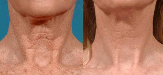 СО2 лазер для удаления морщин на шее