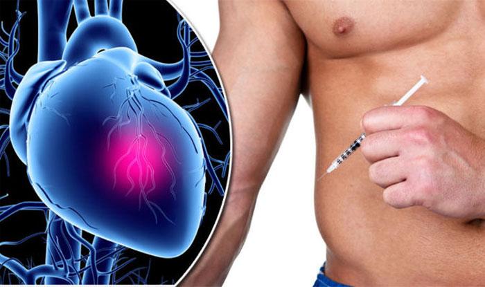 Побочные эффекты стероидов