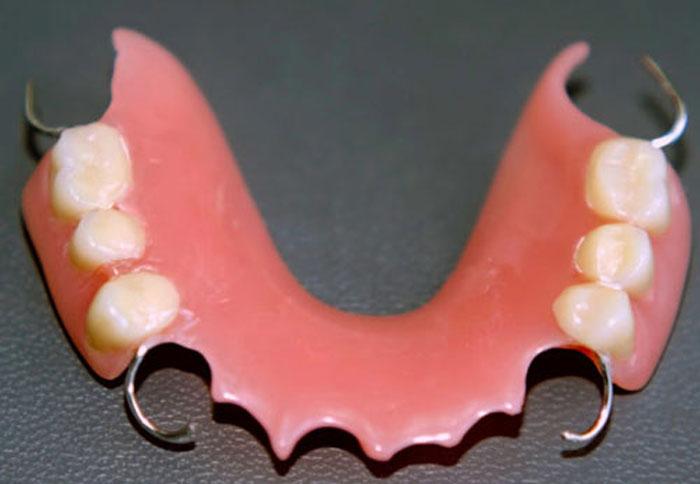 Пластиночный и покрывной зубной протез: какой вариант выбрать