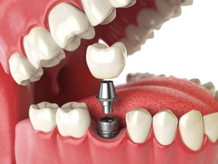 Как проводится имплантация зубов?