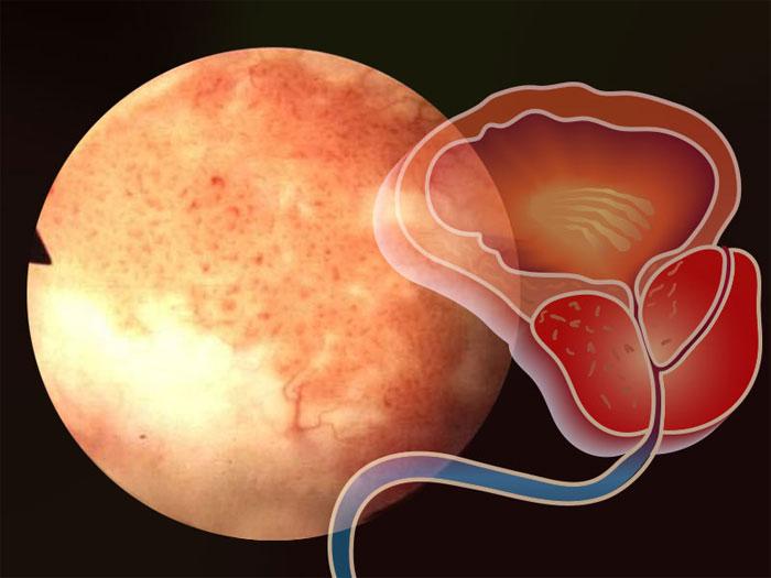 Простата: особенности исследования органа