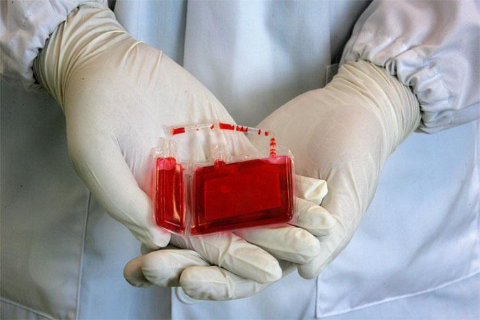 Забор и хранение пуповинной крови