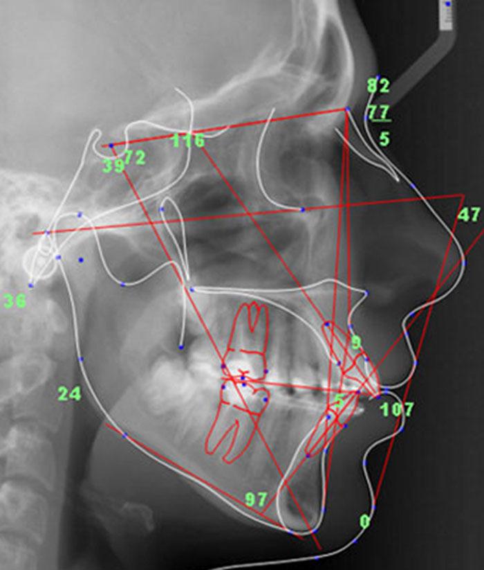 Телерентгенограмма в ортодонтии