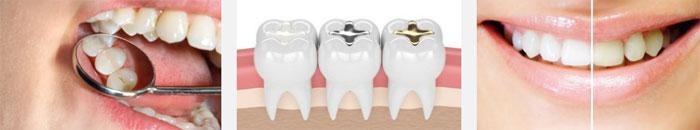 Преимущества лечения зубов в Китае
