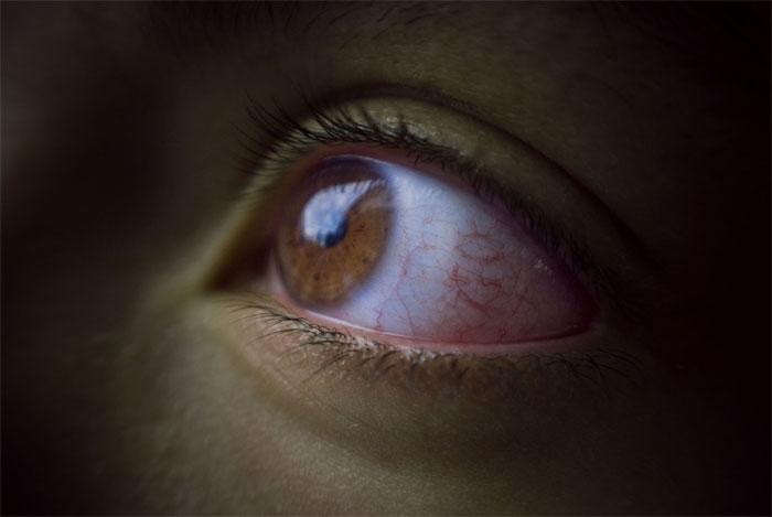 Глаукома – мифы и реальность