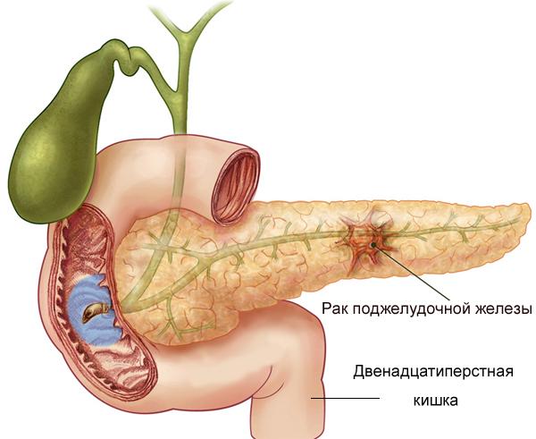 Лечение рака поджелудочной