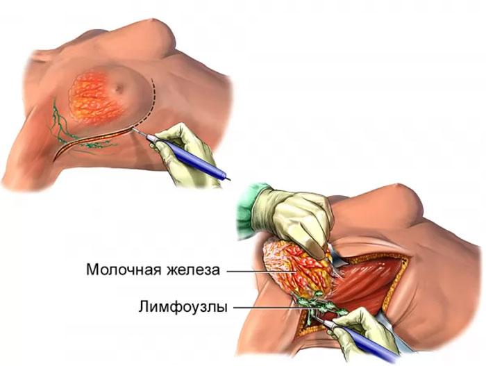 Удаление молочных желез: можно ли сохранить при этом грудь?