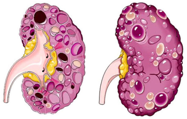 Классификация почечных кист