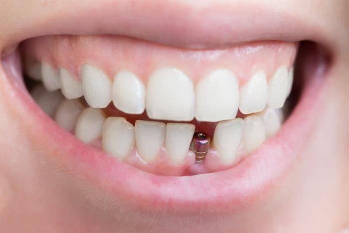 Из чего сделаны зубные имплантаты?