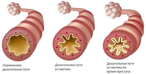 Препарат от астмы может улучшить спринт и силовые показатели