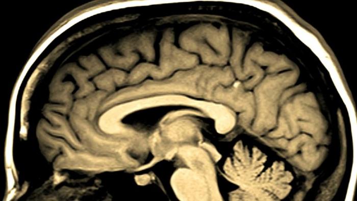 Долгосрочные неврологические последствия COVID-19