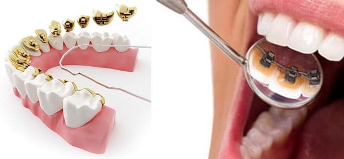 Лингвальные брекеты – скрытое выравнивание зубов, исправление и коррекция прикуса
