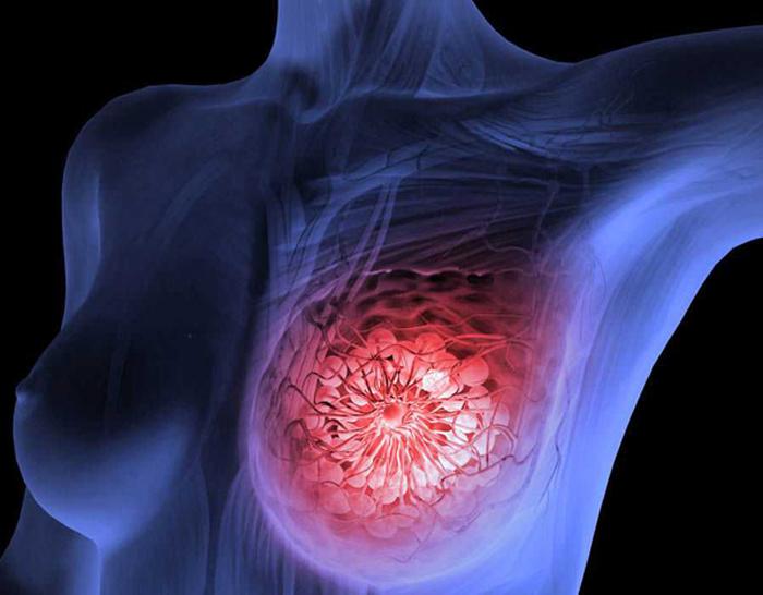 Онкология молочных желез: специфические особенности течения и лечения