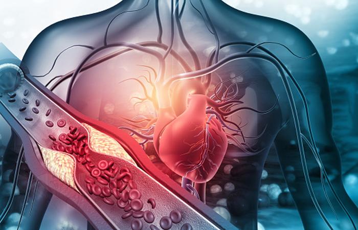 Медицинские мифы о холестерине