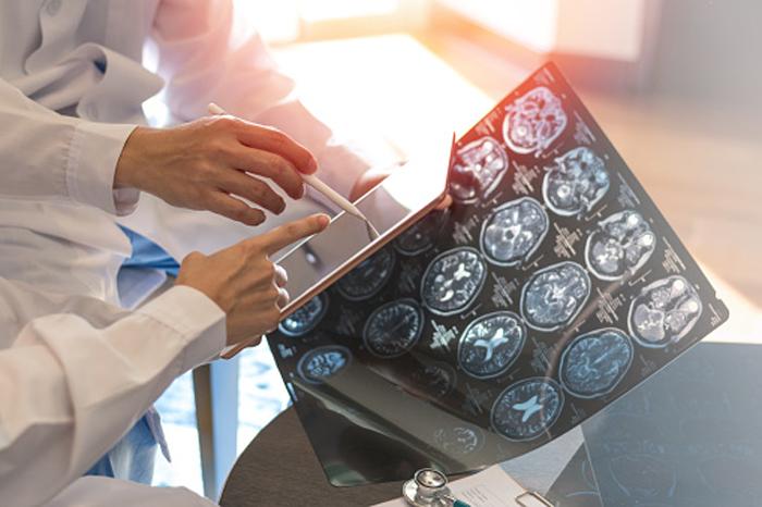 Как связан рассеянный склероз с вирусами